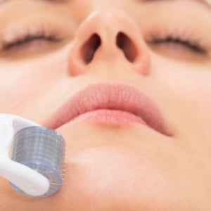 Microneedling facial treatment